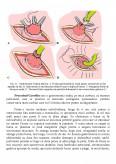 Ingrijirea stomelor - gastrostomia