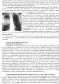 Imagine document Cancerul Pulmonar
