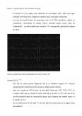 Tahiaritmii ventriculare