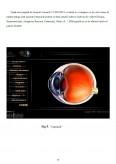 Imagine document Ochiul, vederea, defecte de vedere