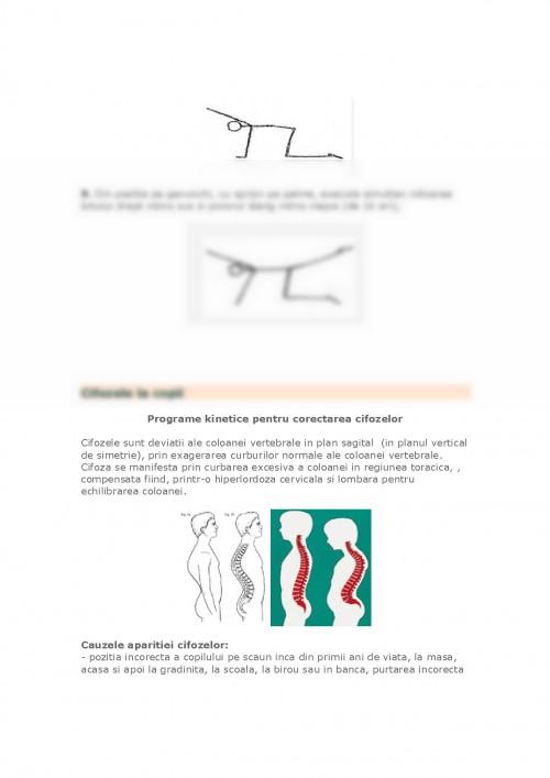 Durere de spate severa la stanga deasupra razei spatelui inferior